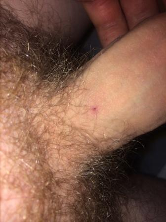 One Pimple On Penis
