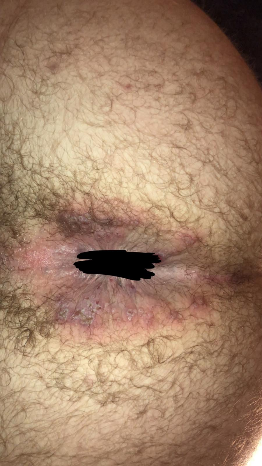 Herpes on the anus pics